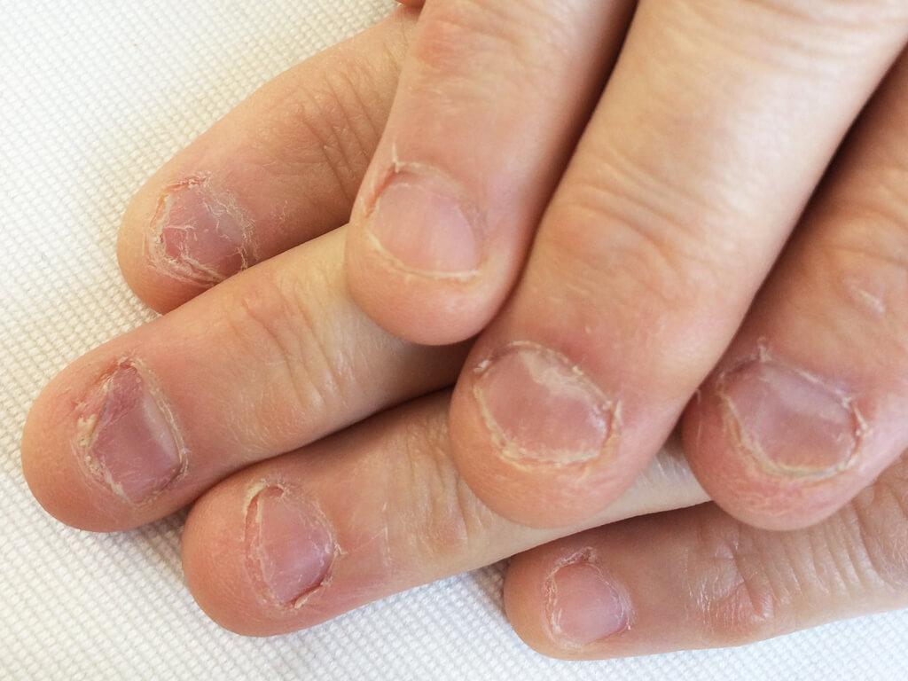 自爪を強くすることで、ボロボロの爪もキレイになる