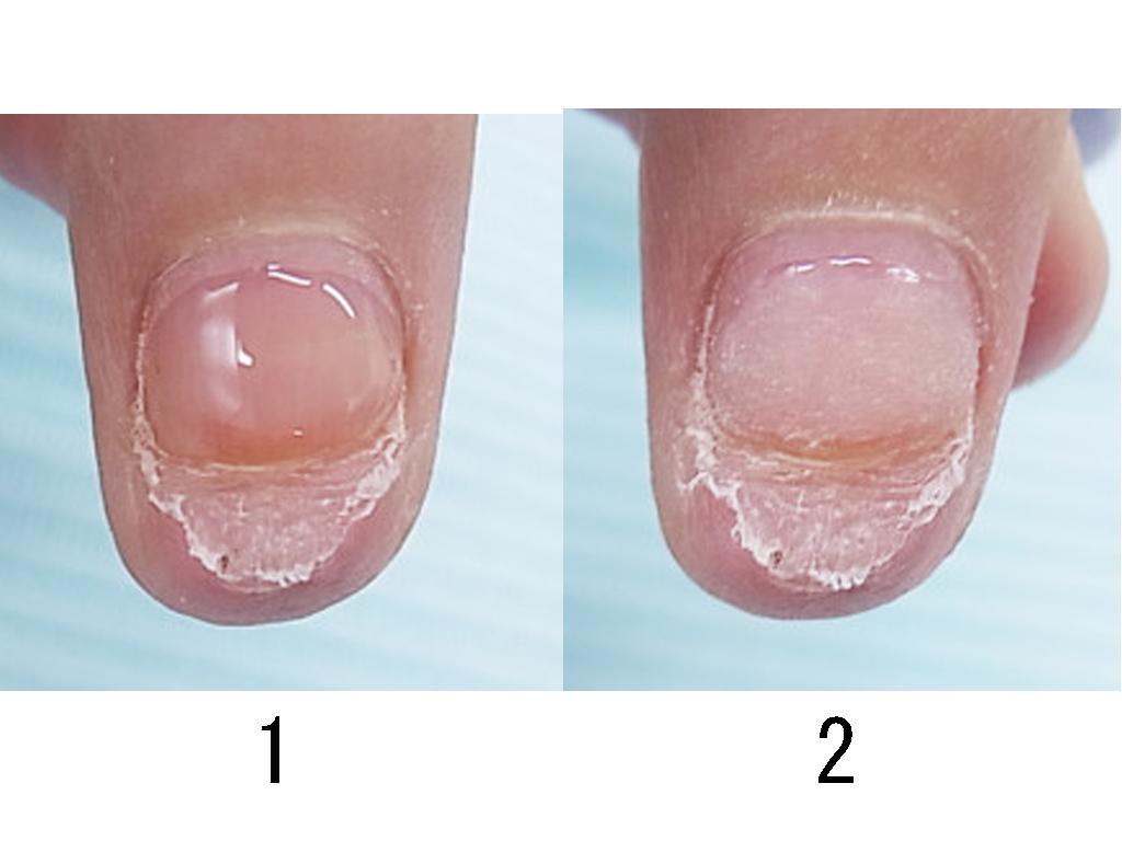 爪の状態を整えて、痛い部分を保護するためのベース作りから