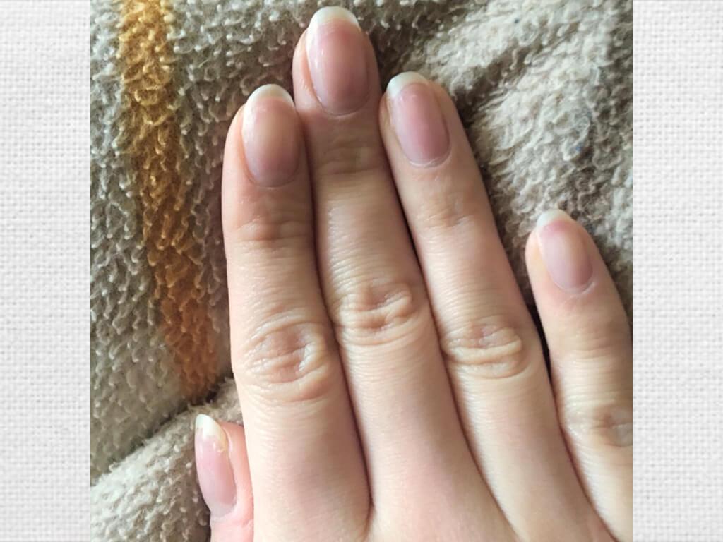 爪を短くカットし過ぎるとNGな理由とは?