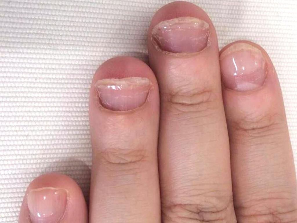 半年経過した頃にはしっかりとした爪の大きさに成長しました。
