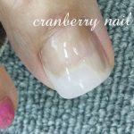 巻き爪や陥入爪…足の爪トラブルはネイルサロンへ!