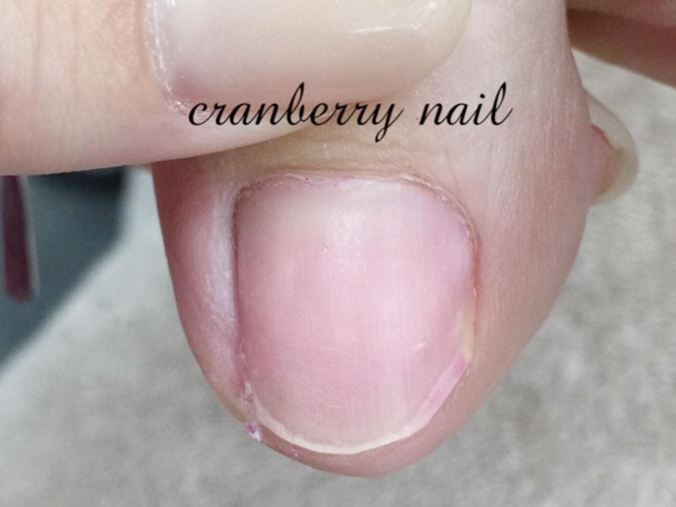 巻き爪になった爪が皮膚に刺さってしまうことも……