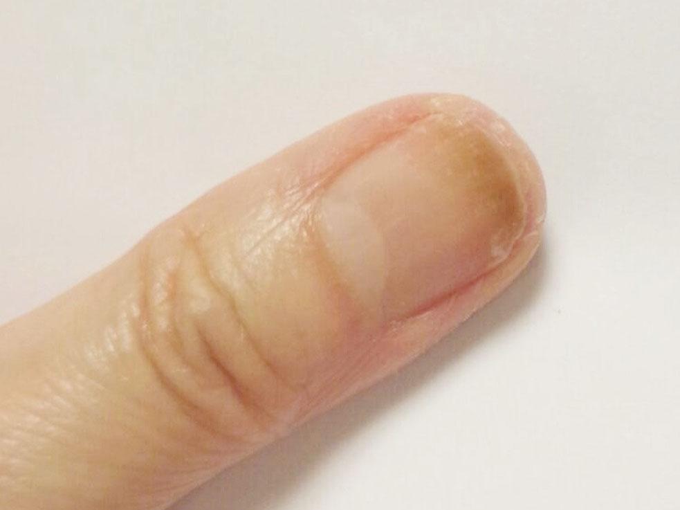 爪が緑に変色!?ジェルネイルで起きるリスク「グリーンネイル」の原因と対処法